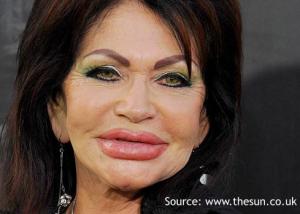 Age-inappropriate lip augmentation