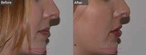 Cosmetic Courses; Image showing Lip Fillere treatment before & after