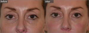 Cosmetic Courses;Picture showing Tear Trough Treatment Before & After