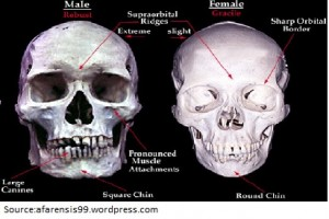 Picture showing the difference between male and famle supraorbital ridge
