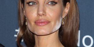 Advanced Botox Treatment Angelina Jolie Jawline