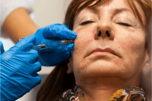 Advanced Botox and Dermal Filler Training Course with Cosmetic Courses (3)
