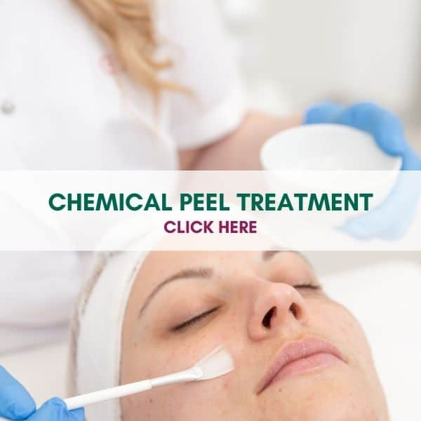 CHEMICAL PEEL TREATMENTS COSMETIC COURSES