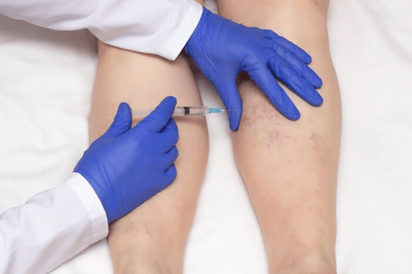 Microsclerotherapy Training Course with Cosmetic Courses (1)