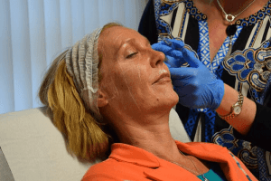 Non-Surgical facelift Training Course with Cosmetic Courses (1)