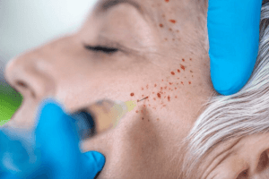 Platelet Rich Plasma Training Course with Cosmetic Courses (1)
