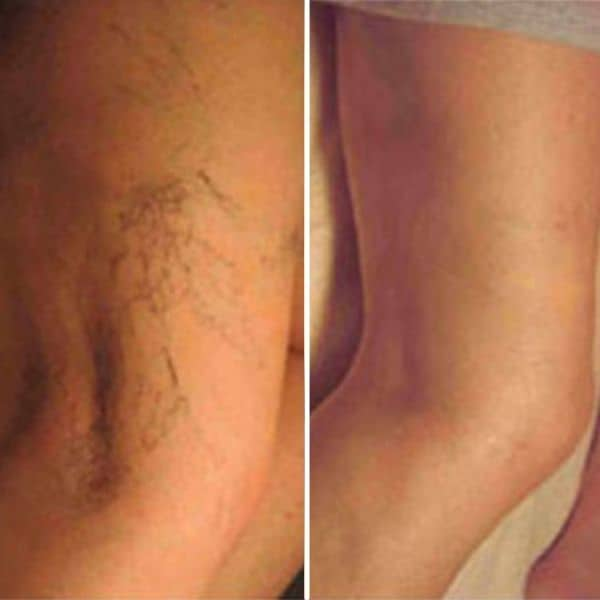 leg thread vein removal before and after cosmetic courses