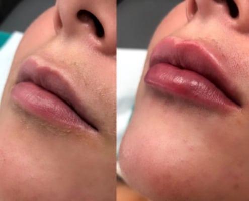 lip filler treatments cosmetic courses (1)