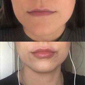lip filler treatments cosmetic courses (2)