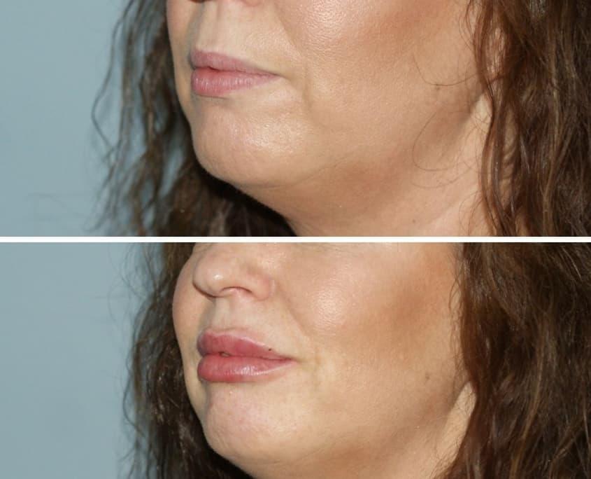 lip filler treatments cosmetic courses (3)
