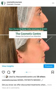 TOP 10 MOST INSTAGRAMMED TREATMENTS NON SURGICAL RHINOPLASTY