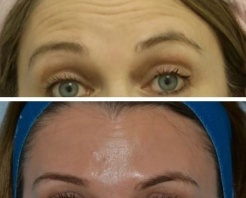 Anti-wrinkle-before-and-after-cosmetic-courses-1-495x400